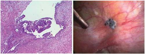 Pathology slide of endometriosis and picture of an endometriosis lesion