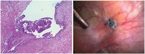 Pathology slide of endometriosis and picture of an endometriosis lesion